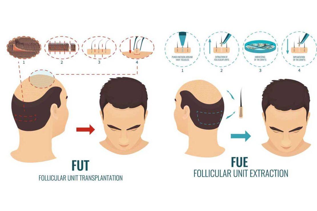 FUT+FUE Hair Transplant In Turkey