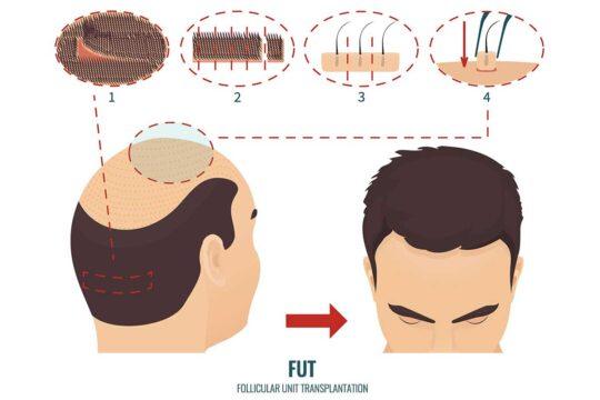 FUT Hair Transplant In Turkey