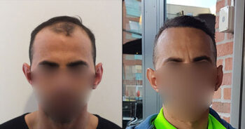 Hair Transplant Before and After 1800 Graft 5200 Hair