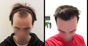 Hair Transplant Before and After 2000 Graft 4000 Hair