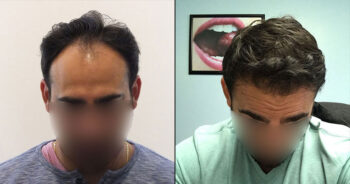 Hair Transplant Before and After 2200 Graft 4500 Hair