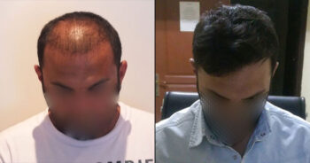 Hair Transplant Before and After 2200 Graft 5000 Hair