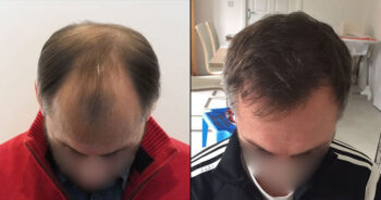 Hair Transplant Before and After 2700 Graft 6000 Hair