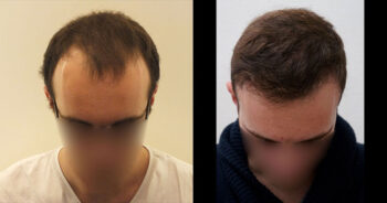 Hair Transplant Before and After 2900 Graft 7000 Hair