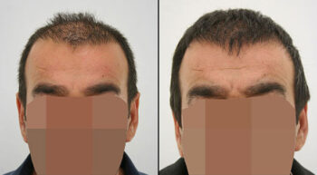 Hair Transplant Before and After 3100 Graft 6500 Hair