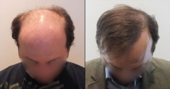Hair Transplant Before and After 5000 Graft 12000 Hair