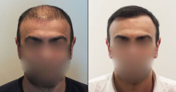 Hair Transplant Before and After 5700 Graft 12000 Hair